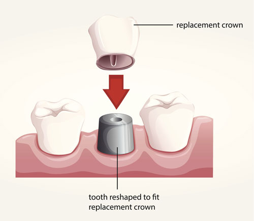 Dental Crown Crestview Dental Group CA 95050